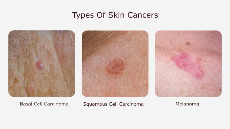 Types Of Skin Cancers