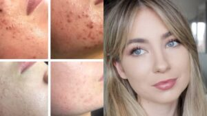 When to See A Gynecologist for Hormonal Acne: Hormonal Acne Specialist Sydney