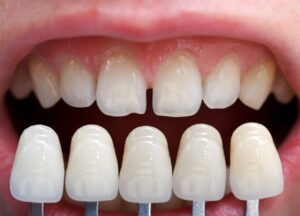 Why are veneers in Sydney getting so popular for tooth protection?